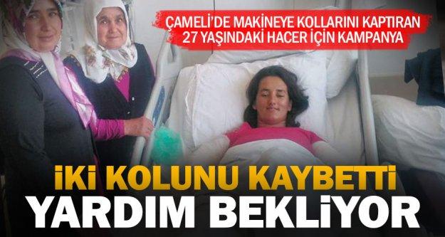 Kollarını kaybeden Çamelili Hacer için kampanya