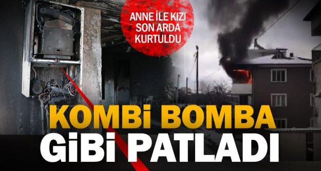 Kombi bomba gibi patladı, anne ile kızı son anda kurtuldu