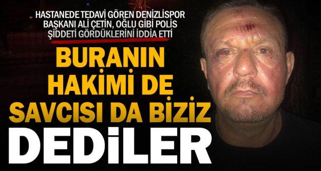 Kaburgası kırılan Denizlispor Başkanı Ali Çetin, polislerden şikayetçi olduklarını söyledi