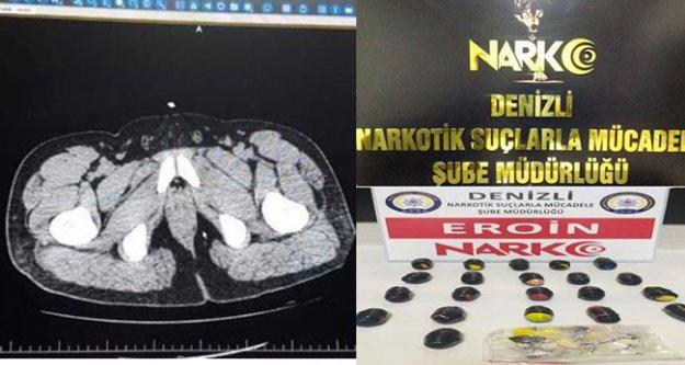 İranlı kurye, midesinde 250 gram eroinle yakalandı