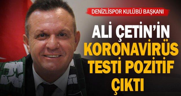 Denizlispor Kulübü Başkanı Ali Çetin: 'Koronavirüs testim pozitif çıktı'