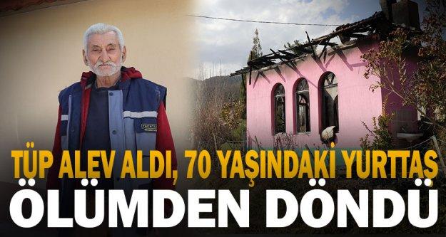Evinde yangın çıkan 70 yaşındaki yurttai yaralandı