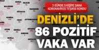 Denizlide Kovid-19un pozitif çıktığı 86 vaka var