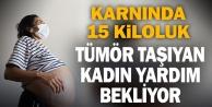 Karnında 15 kiloluk tümör taşıyan kadın yardım bekliyor