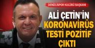 Denizlispor Kulübü Başkanı Ali Çetin: quot;Koronavirüs testim pozitif çıktıquot;